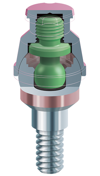 1 features abutment